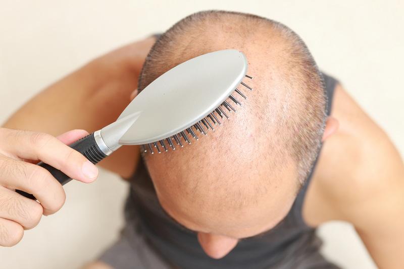 временное выпадение волос: причины