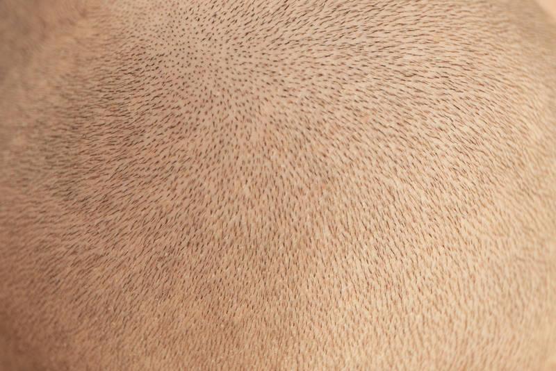 что значит степень травматичности пересадки волос