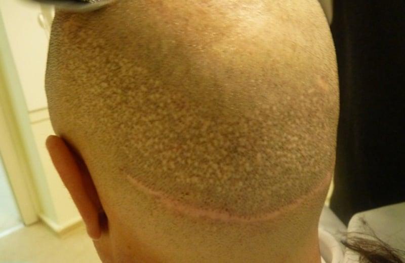 распостраненные жалобы на неудачную пересадку волос