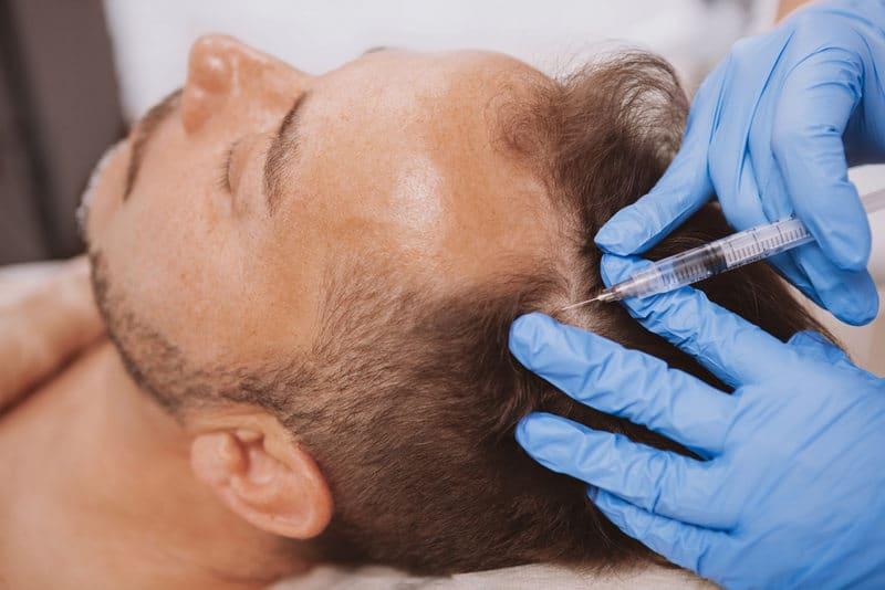 мезотерапия как способ укрепления волос
