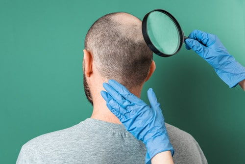 что делать если выпадают волосы на затылке