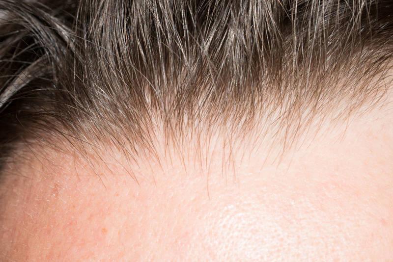 вредны ли загустители для волос